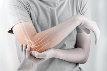 Texas DePuy Synthes Elbow Implant Lawyer