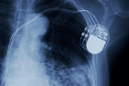 Medtronic Pacemaker Battery Drain Defect Linked to 1 Death